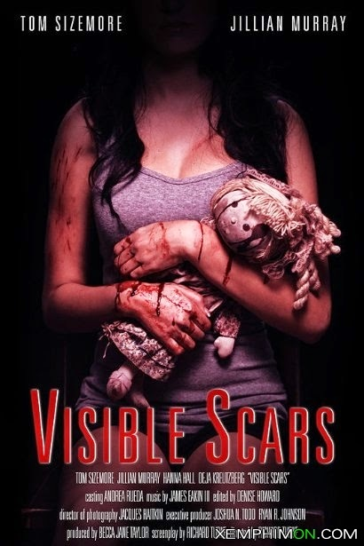 Những Vết Sẹo Hiện Hữu - Visible Scars